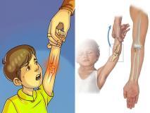 पेरेंट्स सावधान! कभी भी ऐसे न पकडें बच्चे का हाथ, हो जाएगी हड्डियों की ये दर्दनाक बीमारी