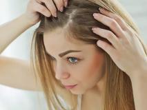Monsoon Hair Care Tips: बारिश में बाल झड़ने, डैंड्रफ, बालों की स्मेल से छुटकारा पाने के 5 उपाय