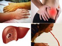 लीवर कैंसर से पहले शरीर देता है 10 चेतावनी, लड़कियों में ज्यादा दिखता है दूसरा लक्षण, तुरंत शुरू करें 8 काम