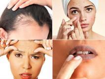 मुंहासे, मस्से, काले होंठ, बाल झड़ना, सफेद बाल, झुर्रियां, मोटापा, अनिद्रा के लिए 10 असरदार उपाय, दूसरे ही दिन दिखेगा असर