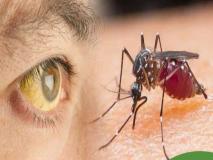Monsoon Health Tips: बारिश के मौसम में इन 10 बीमारियों का ज्यादा खतरा, जानें बचने के उपाय
