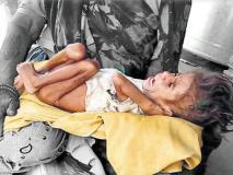 मध्य प्रदेश: राजधानी के पास मिला अति कुपोषित 4 साल का बच्चा, वजन 3 किलो, सरकार बीजेपी पर फोड़ रही ठीकरा