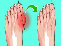 बिना सर्जरी सही हो सकती है अंगूठे के जोड़ की बढ़ी हुई हड्डी, आज ही से शुरू कर दें ये 4 काम