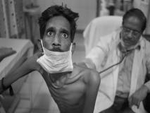 देश में टीबी के मरीजों की संख्या 18.62 लाख के पार, जानिए टीबी के कारण, लक्षण, बचने के उपाय