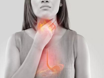 acid reflux home remedies: how to get rid acid reflux fast, 10 home remedies to beat acid reflux | सीने की जलन का इलाज : सीने में जलन और एसिडिटी को रोकने के लिए आजमाएं ये 10 सस्ते और असरदार घरेलू उपाय
