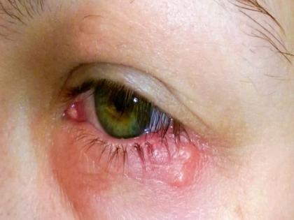 coronavirus symptoms in Hindi: 3 severe symptoms of covid-19 virus you can find in your eyes   COVID-19: आंख में कोरोना की मौजूदगी का पता लगाएगा एम्स, ये हैं आंखों में दिखने वाले कोरोना के 3 लक्षण