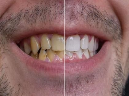 Ayurveda tips to whiten teeth: Simple and effective Ayurveda remedies whiten your teeth at home naturally   दांतों को सफेद करने का आयुर्वेदिक तरीका : पीले-काले गंदे दांतों को सफेद करने के लिए आजमाएं ये आसान आयुर्वेदिक उपाय