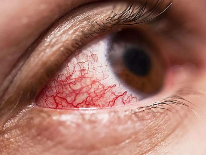 Coronavirus second wave symptoms in diabetes: black fungus and and others 5 COVID-19 symptoms in diabetic patients | COVID 2nd wave symptoms: ब्लैक फंगस के अलावा कोरोना के मरीजों में दिख रहे ये 5 गंभीर लक्षण, तुरंत जांच कराएं