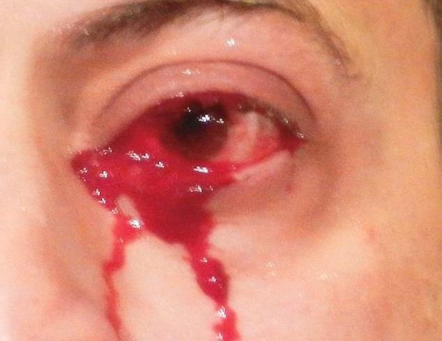 Italy Man who cries blood, doctors says they were in rare condition | दो घंटे तक रोता रहा ये शख्स खून के आंसू, इस अजीब बीमारी को देख कर डॉक्टर्स भी हुए हैरान