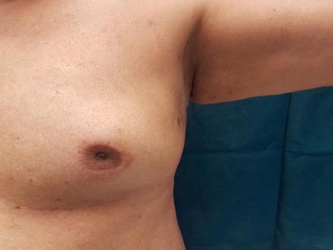 Breast Cancer Awareness Month: early signs and symptoms of breast cancer in men, causes, risk factors and medical treatment in Hindi | Breast Cancer Awareness Month: पुरुषों में ब्रेस्ट कैंसर के 6 लक्षण, दूसरा लक्षण महसूस होने पर तुरंत जाएं डॉक्टर के पास