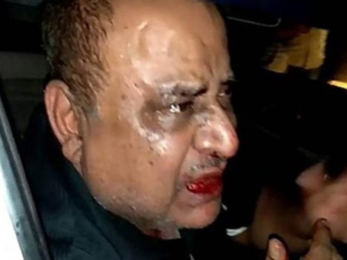 Haryana DIG beaten in road rage incident viral video | रोड रेज में हरियाणा DIG की हुई पिटाई, खून से लथपथ वीडियो हुआ वायरल