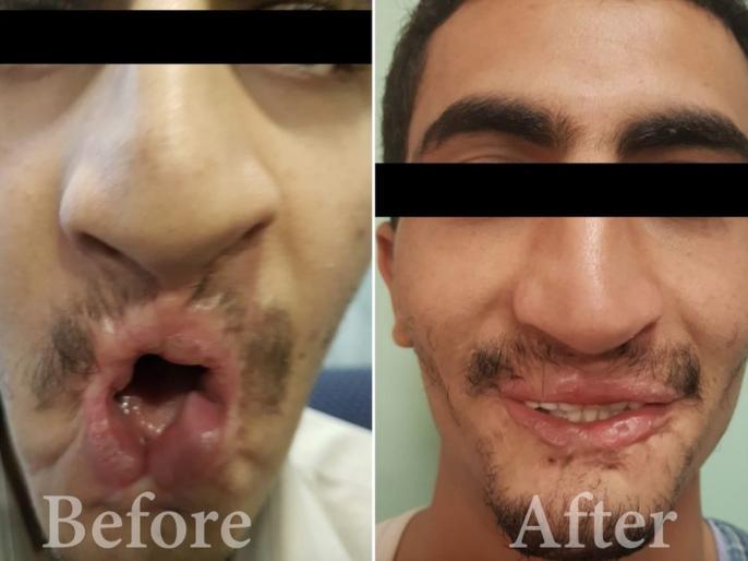 Mobile blast, face of face deteriorated, 26-year-old Yemen citizen returned to happiness due to rare surgery   मोबाइल में धमाका, बिगड़ गया मुंह का फेस,दुर्लभ सर्जरी से 26 साल केयमन नागरिक की लौटीखुशियां