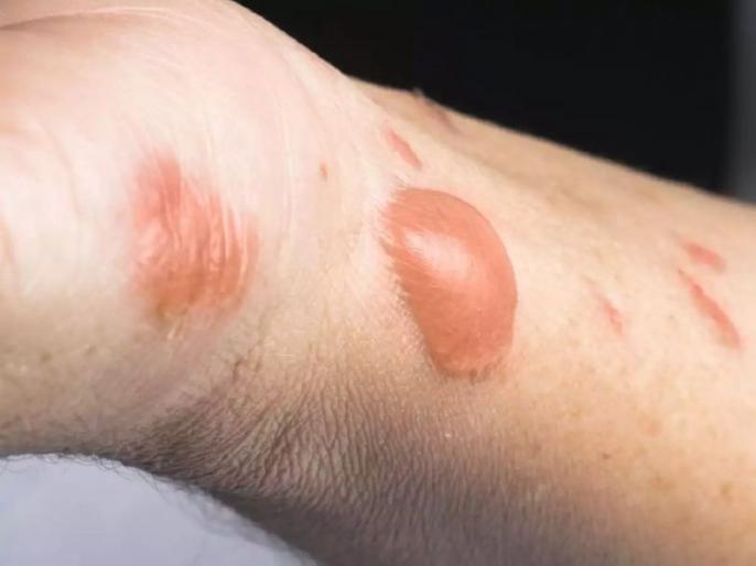 first aid for burn: How To Treat A Burn, First Aid and medical Treatment for Burns | शरीर के किसी भी हिस्से के जलने पर तुरंत करें ये 3 काम, नहीं पड़ेंगे फफोले, जलन भी होगी कम