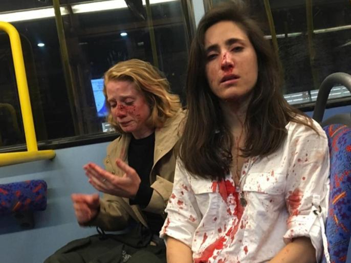 Gay couple beaten for refusing to kiss on bus in London viral facebook | लंदन: समलैंगिक महिलाओं ने बसयात्रियों की माँग पर Kiss करने से किया इनकार तो लोगों ने की पिटाई, वायरल हुई पीड़िता पोस्ट