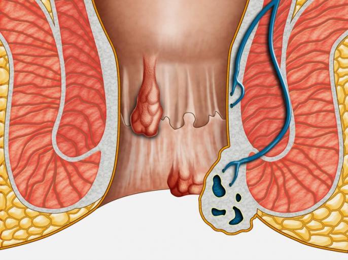 Natural home remedies for piles, Piles treatment, foods eat and avoid in haemorrhoids in Hindi | बवासीर के दर्दनाक मस्सों को कुछ दिनों में सुखाकर रख देंगी ये 5 चीजें, नहीं पड़ेगी ऑपरेशन की जरूरत