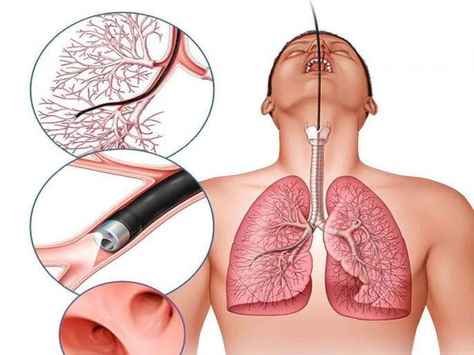 How to detox lungs naturally: 10 easy tips and home remedies to clean lungs, natural ways to detoxify lungs at home, tips to clearing the lungs in Hindi | फेफड़े साफ करने के उपाय : फेफड़ों में जमा गंदगी को बाहर निकालने और मजबूत बनाने के 10 आसान घरेलू उपाय