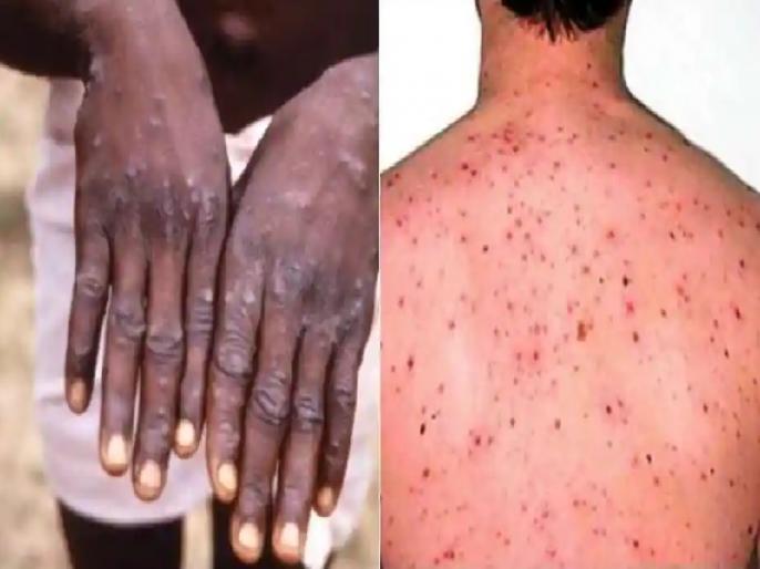 Monkeypox outbreak in the UK two treated for rare viral infection in north wales | कोविड-19 महामारी के बीच एक और बीमारी ने दी दस्तक, 100 में से 10 रोगियों के मरने का होता है खतरा