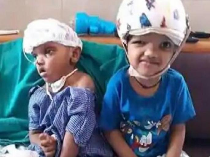 One child Kalia of Odisha twin separated by Craniopagus surgery dies in cuttack | तीन साल पहले सर्जरी से अलग किए गए सिर से जुड़े दो बच्चों में से एक की मौत, भारत में पहली बार किया गया था ऐसा ऑपरेशन