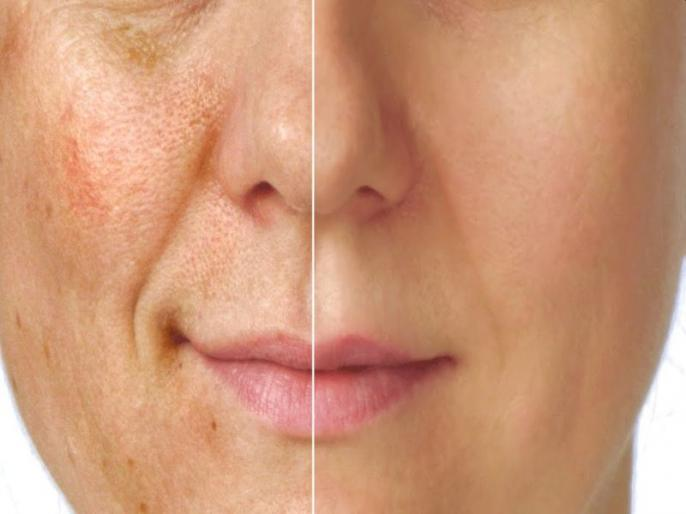 how to get rid Blemishes or pigmentation: 5 best and effective home remedies for pigmentation on face in Hindi | दाग धब्बे का इलाज : चेहरे पर बार-बार धब्बे होने के 3 कारण और राहत पाने के 4 घरेलू उपाय