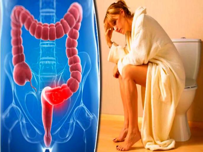 Anal Fissures treatment: how to get rid of fissures, causes, sign and symptoms of Anal Fissures, Home Remedies and medical treatment of Anal Fissures in Hindi | Anal fissure treatment: बवासीर जैसे रोग 'फिशर' के कारण, लक्षण, बचाव और 6 घरेलू उपाय