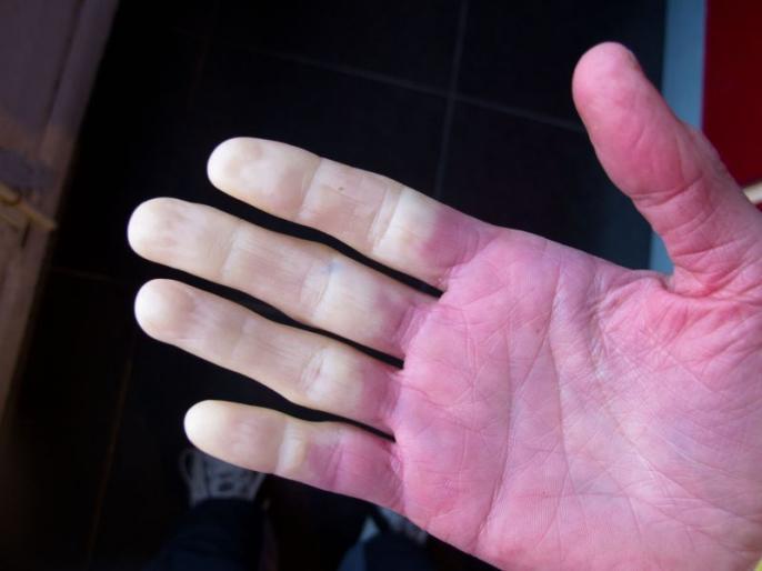 winter care tips : early signs and symptoms of Raynaud's Disease and syndrome, causes, risk factors, prevention tips and home remedies | सावधान! सर्दियों में कहीं आपके हाथ-पैरों का रंग तो नहीं बदल रहा? इस गंभीर बीमारी के हैं लक्षण