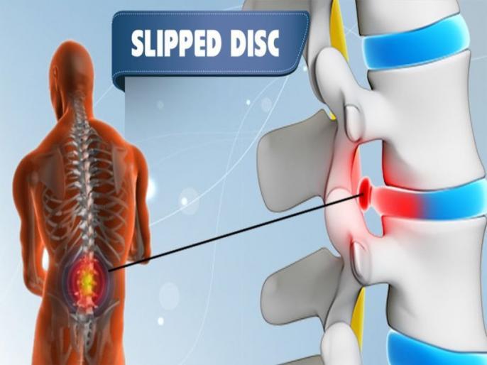Pinched nerve and spinal disc herniation Symptoms, Causes, Effects, Treatment, surgery, risk factors, Home and Ayurveda remedies in Hindi   दबी हुई नस और स्लिप डिस्क का रामबाण इलाज है ये चीज, दर्द से तुरंत मिलेगी राहत