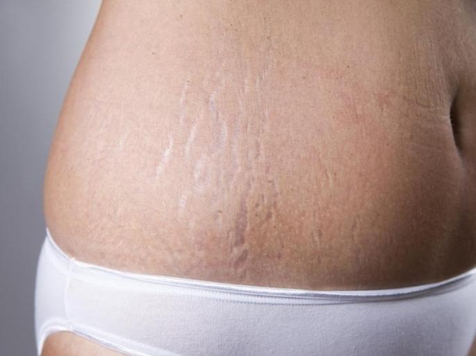 Pregnancy Tips: 7 easy and effective home remedies to get rid of stretch marks | स्ट्रेच मार्क्स हटाने के लिए प्रेगनेंसी में ही करें इन 7 में से कोई एक उपाय