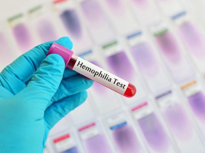 World Haemophilia Day: Causes, Symptoms, and Treatment of this disease | बच्चे को बिना वजह नाक, मुंह और गुदा से खून आता है? उसे हो सकती है यह खतरनाक बीमारी