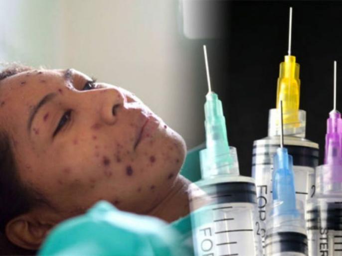 Breakthrough unlikely within a year; COVID-19 vaccine development at early stage in India: Experts Read more at: https://www.deccanherald.com/science-and-environment/breakthrough-unlikely-within-a-year-covid-19-vaccine-development-at-early-stage-in-india | भारत में एक साल में कोविड-19 का टीका विकसित होने की उम्मीद कम : विशेषज्ञ