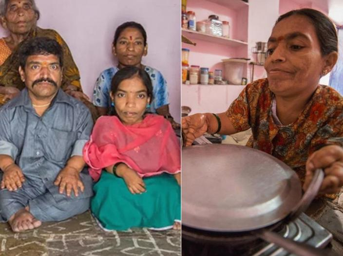 India's biggest dwarf family |