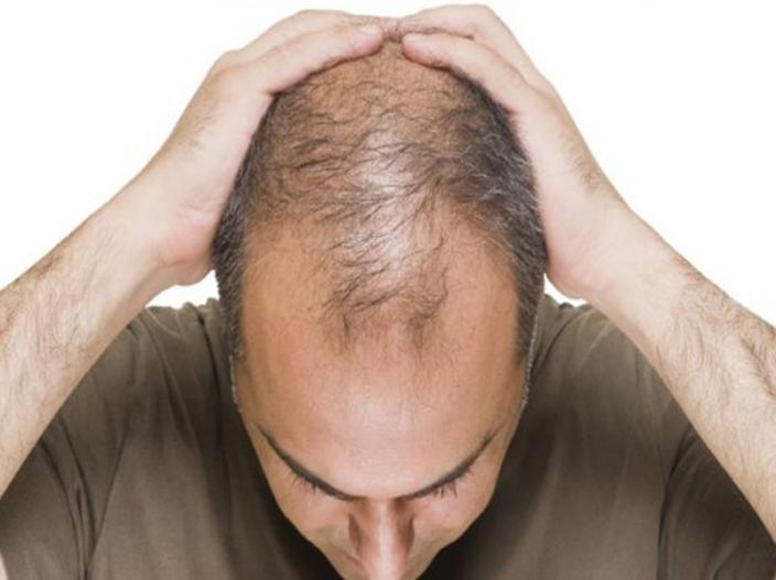 In Pics: HEALTH BENEFITS OF HOME REMEDIES FOR HAIR LOSS, GREY HAIR AND DANDRUFF |