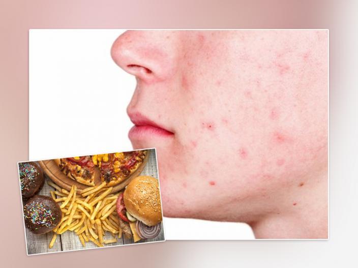 pimple cure  